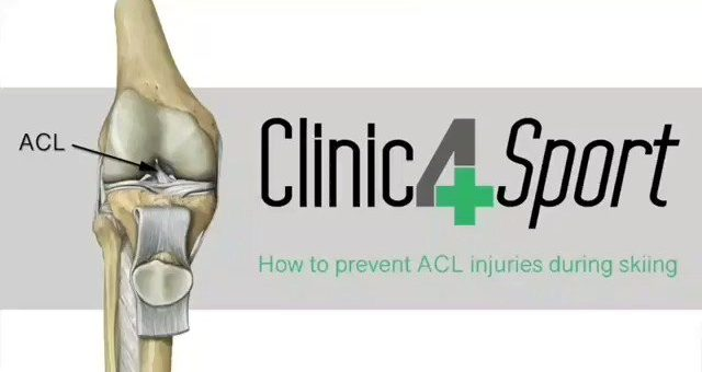 ACL injuries most commonly occur during sports that involve sudden stops or chan…
