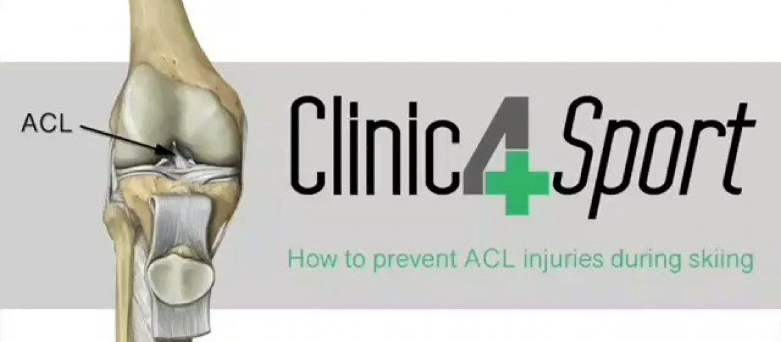 acl-injuries-most-commonly-occur-during-sports-that-involve-sudden-stops-or-chan.jpg